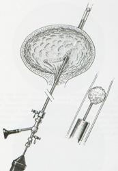 Calculo renal tratamento ureterolitotripsia
